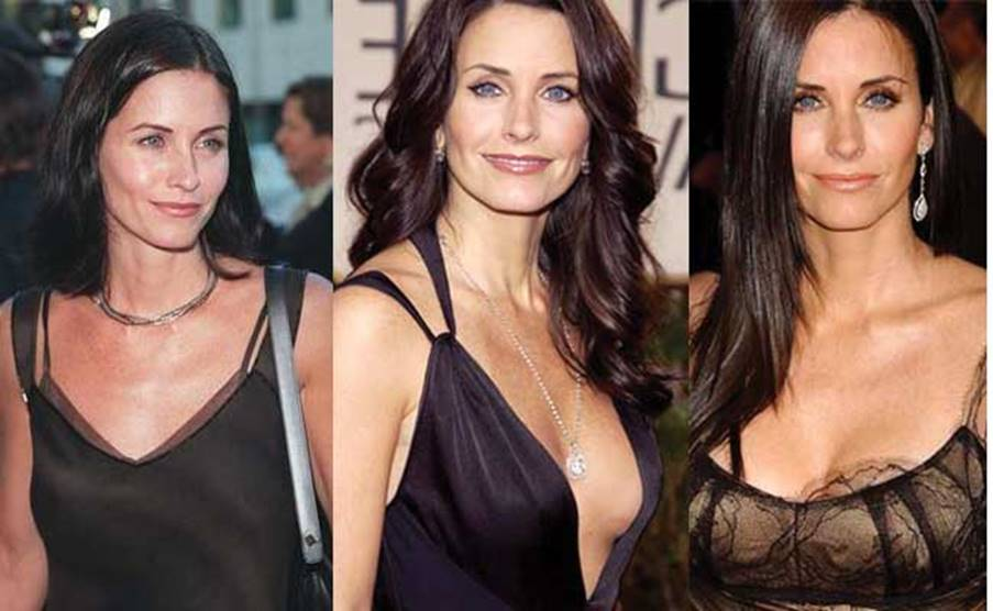 Courtney Cox's Plastic Surgery